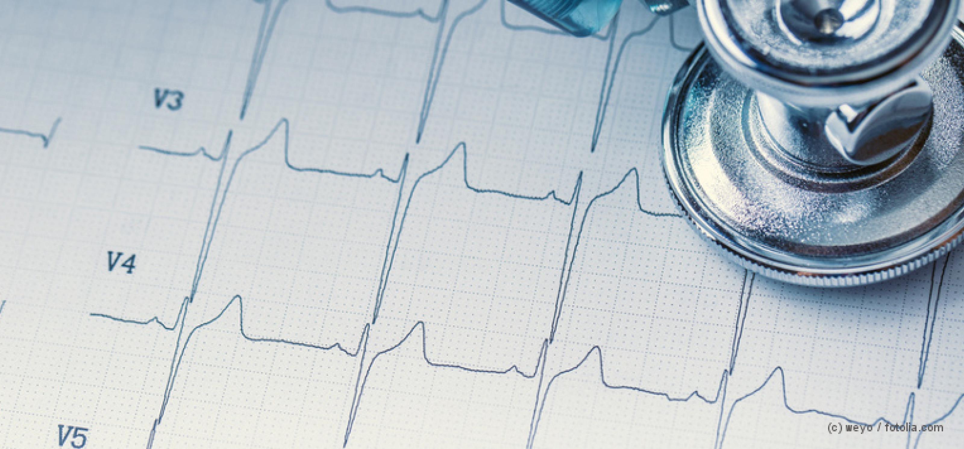 Stethoskop und EKG-Linie