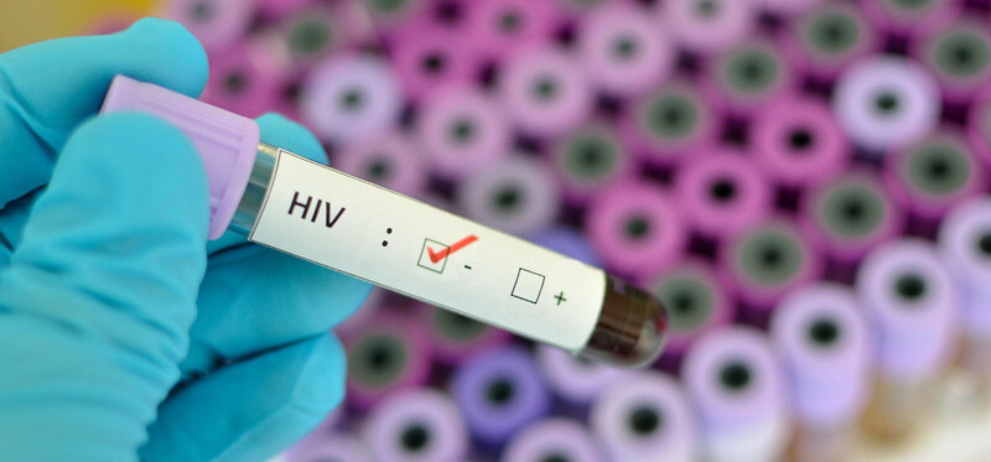 HIV negativ